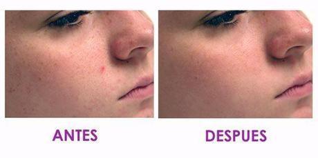Antes y después de microdermoabrasión con punta de diamante