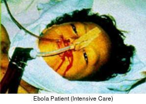 Reemergencia del virus Ébola
