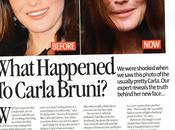 Celebrities adicción botox