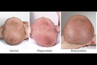 Resultado de imagen de braquicefalia y plagiocefalia