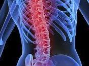 Prevenir osteoporosis desde juventud