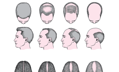 alopecia-ps-650x360