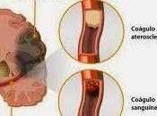 Exámenes accidentes cerebrovasculares abril