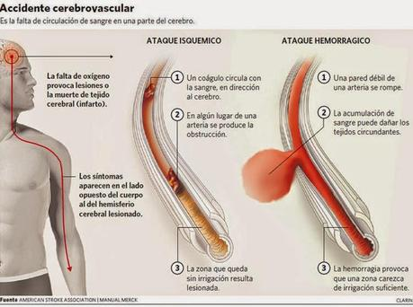 Noticias de accidentes cerebrovasculares