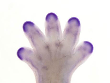 ¿Podría el ser humano regenerar su cuerpo?