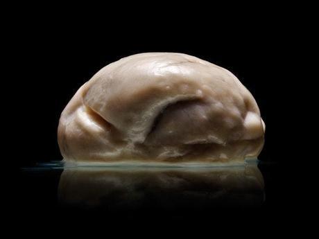 Descubren un cerebro humano que no tiene pliegues