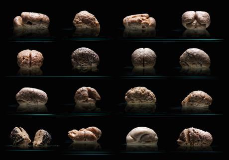 cerebro liso