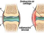 artrosis: prevención tratamiento
