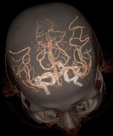 Imágenes del cuerpo humano captadas con tomografía computarizada