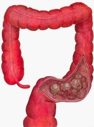 term papers on colon cancer