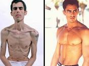 Notas Curiosas: ¿Hombres anoréxicos?