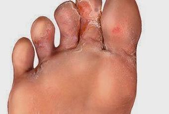 El hongo de los pie como es mejor curar
