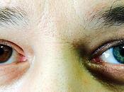 niña ojos