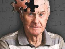 prueba piel podría detectar tempranamente Alzheimer