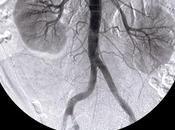 Segundo jueves marzo, mundial riñón