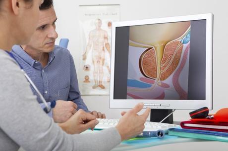 riesgo de dutasterida de cáncer de próstata