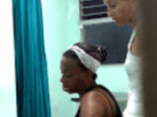 Cuba: opositores huellas maltrato físico recibido durante arresto