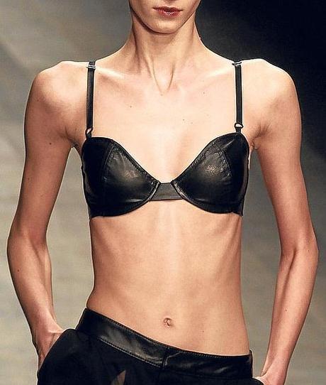 La FAO aprueba la anorexia?