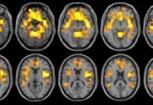 ¿Escuchar música como tratamiento para la epilepsia?
