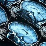 Las conmociones cerebrales pueden conducir al desarrollo de la enfermedad de Alzheimer