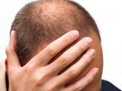 ¿Quedándose calvo? Opciones recrecimiento cabello para hombres calvicie