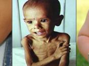 rasgos malnutrición.