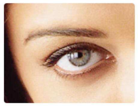 La Blefaroplastia en la Eliminación de las Bolsas del Contorno de los Ojos