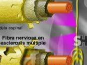Herpes esclerosis múltiple