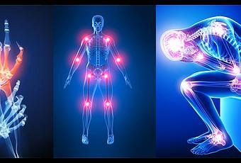 La insuficiencia pozvonochnoy las arterias a sheynom la osteocondrosis