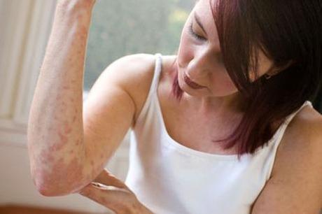 Sarpullidos y Dermatitis