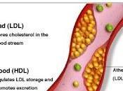 colesterol mejores alimentos para combatirlo