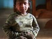 """Ramesh Darji """"niño piedra""""."""