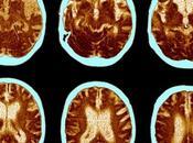 autismo, trastorno obsesivo compulsivo TDAH, compartirían marcadores cerebrales