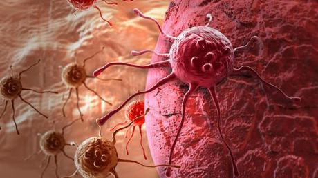 lo que se llama cáncer de próstata después de la extracción de próstata