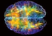 """La adiccion """"NO"""" es una enfermedad cerebral (PDF)"""