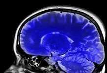 El narcisismo patológico se relaciona con la reducción del grosor y volumen de la corteza frontal del cerebro