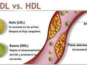 Debate sobre colesterol enfermedades cardiovasculates