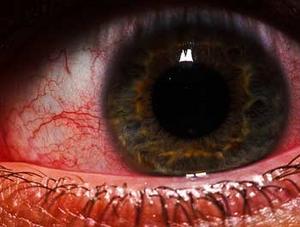 297 oeil rouge s  Homeopatía para tratar heridas en el ojo