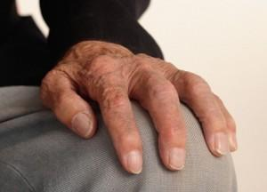 artritis2 300x216 Homeopatía para artritis reumática