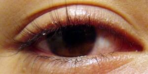 blefaritis cronica 300x151 Homeopatía en casos de cuerpos extraños en el ojo