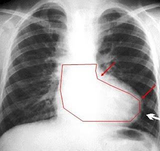 Signos radiográficos clásicos de las cardiopatías congénitas