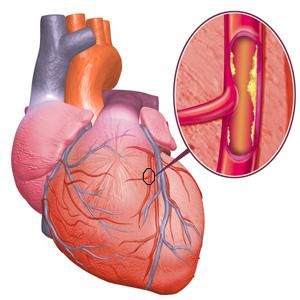 corazon colesterol Lo que se debe saber sobre el colesterol