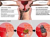 ¿Qué cáncer cuello útero?