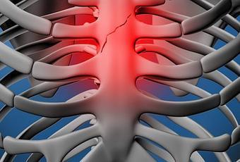 fractura de esternon cirugia