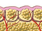 Adelgazar cirugía enfriamiento celulas