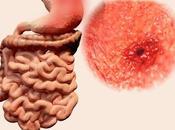 alimentos alivian dolor úlcera