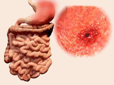 Los alimentos que alivian el dolor de una úlcera