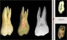 Atlas de anatomía dental para tcaes e higienistas dentales.