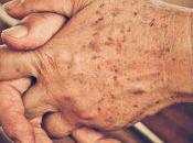 Manchas Relacionadas Envejecimiento