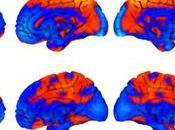 cerebros astronautas cambian forma durante vuelo espacial